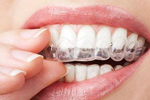 ピース 歯ぎしり マウス マウスピースおすすめ10選|歯科医師が選び方や種類を解説《口コミ付き》